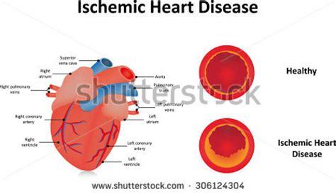 Coronary Heart Disease Chd Health Essay