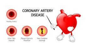 Essay on coronary heart disease